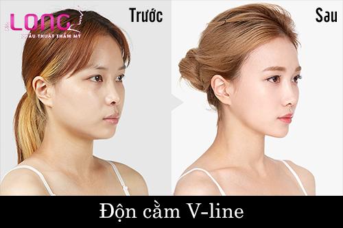 don-cam-co-dau-khong-1