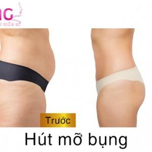 hut-mo-bung-gia-bao-nhieu-tien-1