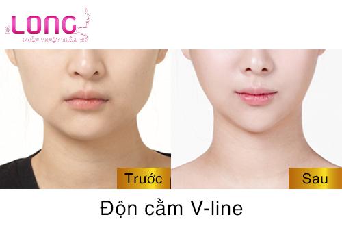 phau-thuat-don-cam-vline-nguy-hiem-khong-1