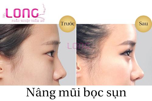 danh-gia-muc-do-an-toan-khi-nang-mui-boc-sun-nhan-tao-bac-si-long-1