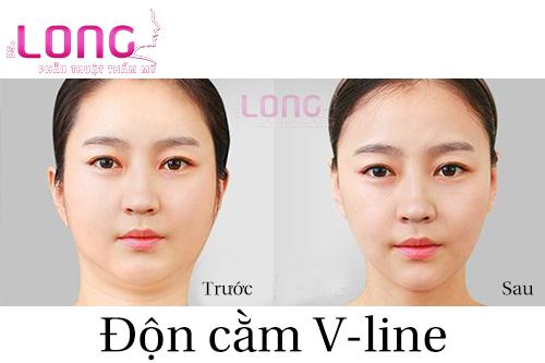co-bao-nhieu-phuong-phap-don-cam-tham-my-1