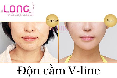 phau-thuat-don-cam-vline-sung-bao-lau-thi-lanh-1