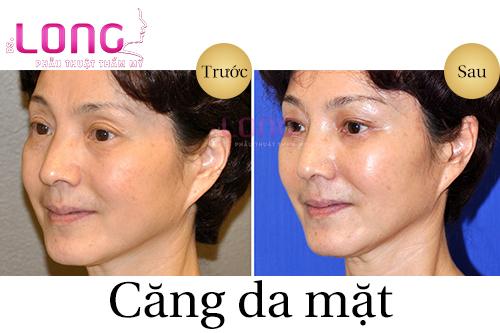 cang-da-mat-khong-phau-thuat-bao-lau-thi-lanh-va-dep-1