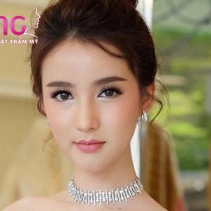 phau-thuat-don-cam-vline-co-pha-tuong-so-khong