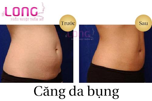 tham-my-cang-da-bung-co-dau-khong-1