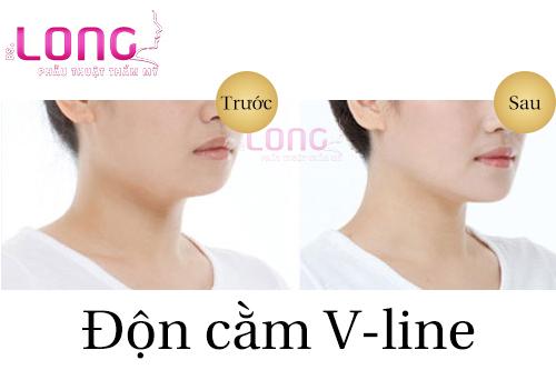 nguoi-mat-tron-don-cam-vline-co-duoc-khong-1