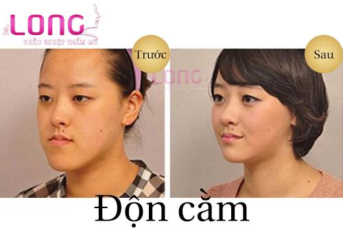don-cam-sua-lai-chi-phi-bao-nhieu-tien-1