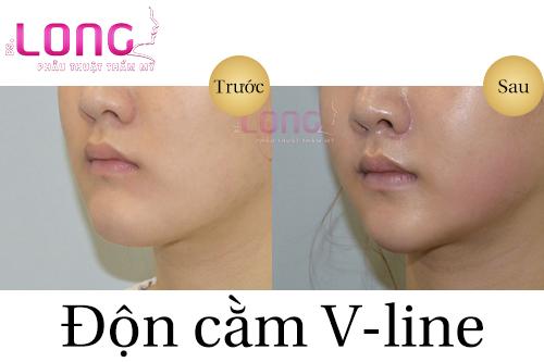 don-cam-v-line-xong-co-an-duoc-khong-1