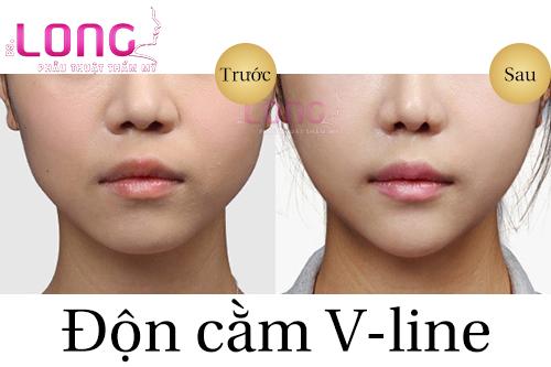 phau-thuat-don-cam-v-line-co-an-toan-khong-1