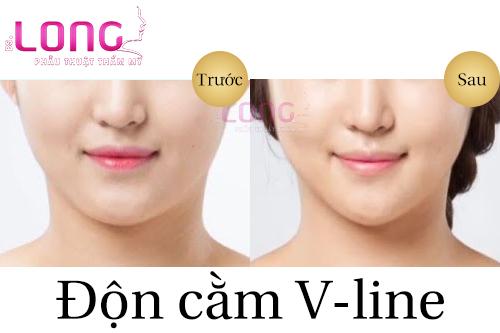 cam-lem-co-phau-thuat-don-cam-vline-duoc-khong-1