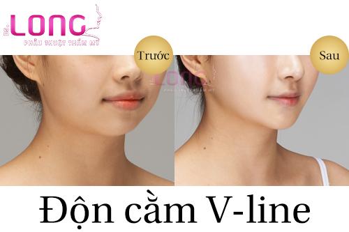 don-cam-tham-my-co-ket-qua-vinh-vien-khong-1