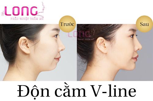 don-cam-vline-danh-cho-doi-tuong-nao-1