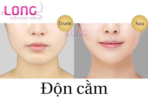 don-cam-cho-nguoi-bi-ho-co-duoc-khong-1