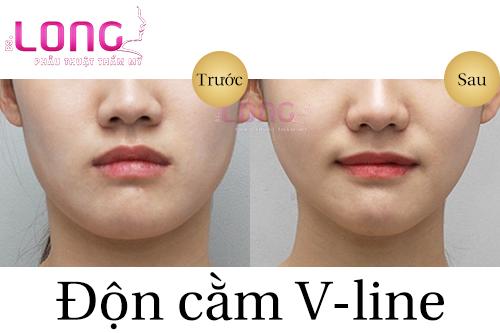 don-cam-v-line-co-hop-voi-nguoi-mat-tron-khong-1