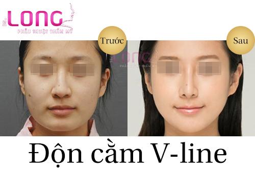 phau-thuat-don-cam-co-vinh-vien-khong-1