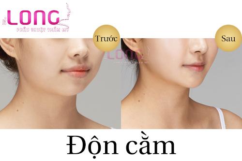 co-nen-phau-thuat-don-cam-khong-phau-thuat-bang-chat-lam-day-1