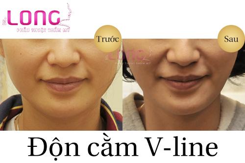 doi-tuong-phu-hop-de-don-cam-vline-1