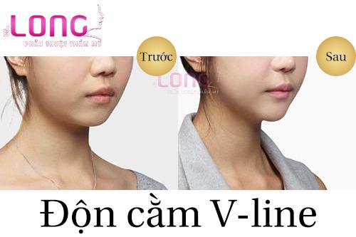 don-cam-nhu-the-nao-la-an-toan-1