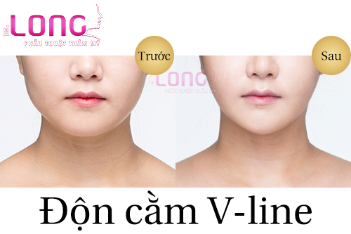 don-cam-v-line-danh-cho-doi-tuong-nao-1