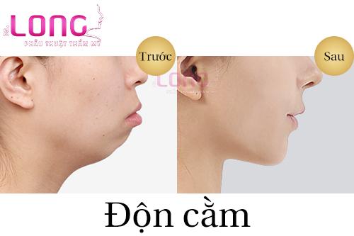 don-cam-xong-bi-lech-co-sua-lai-duoc-khong-1