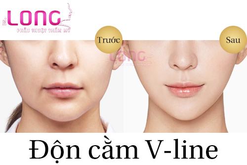 don-cam-vline-xong-co-kieng-cu-gi-khong-1