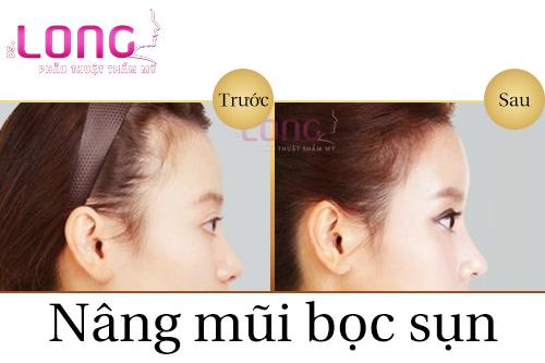 nen-nang-mui-boc-sun-nhan-tao-o-dau-1