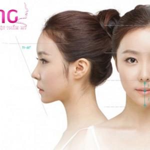 don-cam-vline-xong-co-bi-sung-bam-nhieu-khong